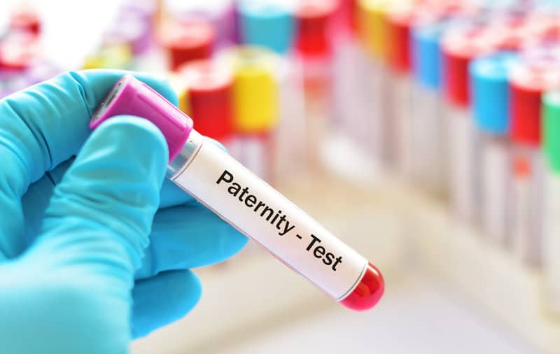 Everything You Need to Know About Paternity Testing